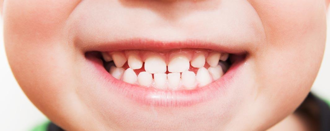 Dental Health: health benefits of mango